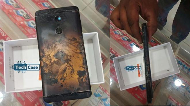 Điện thoại Xiaomi phát nổ ngay trong túi quần